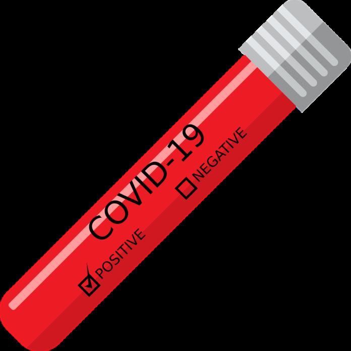 Śląskie znowu w czołówce zakażeń. Wzrost liczby zmarłych z powodu COVID-19 3